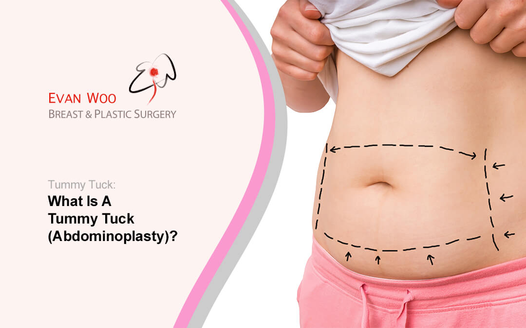 What Is A Tummy Tuck (Abdominoplasty)?