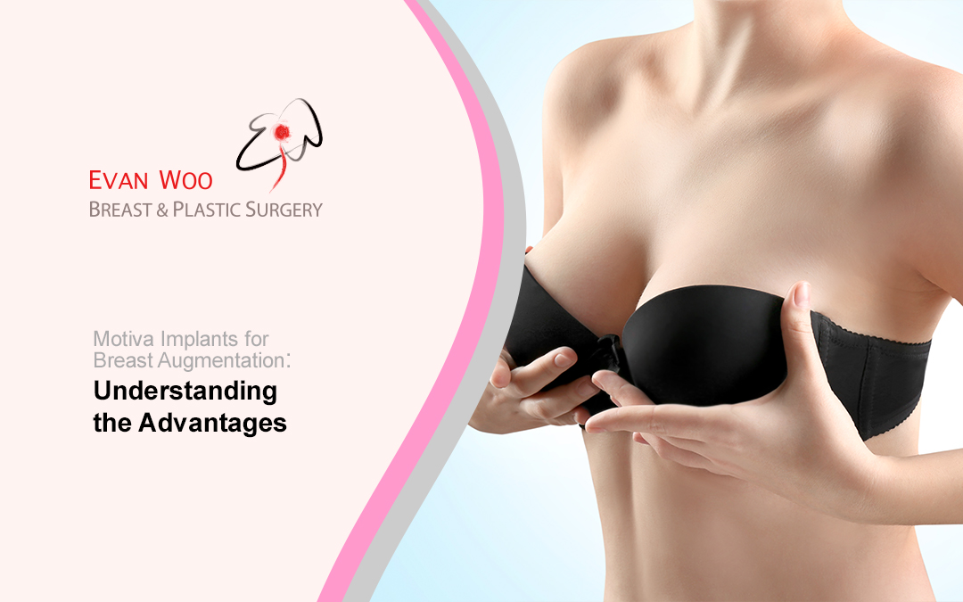 Motiva Implants for Breast Augmentation: Understanding the Advantages