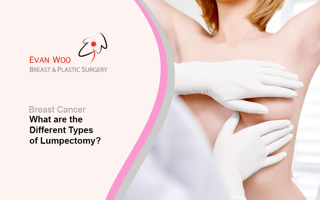 What Are The Different Types of Lumpectomy?