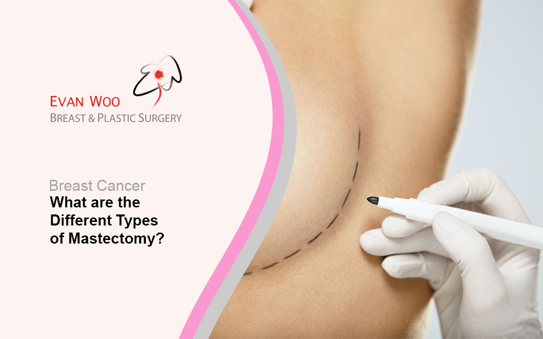 What are the Different Types of Mastectomy?